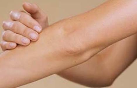 cuidado de codos y rodilla